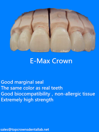 Dental All-Ceramic Empress Crowns Made in China Dental Lab