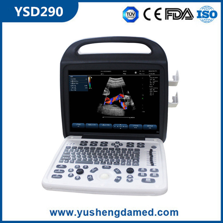 Hospital Diagnostic Medical Equipment 3D/4D Portable Color Doppler Ultrasound