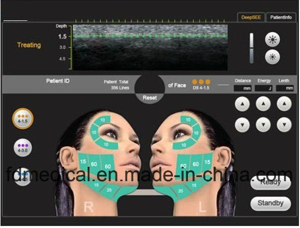 Easy Facial Skin Younth Crow′s Feet Removal Hifu Beauty Machine
