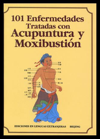 101 Enfermedades Trat. Acupunt. Y Moxibustion (V-10) Acupuncture