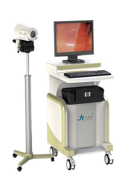 colposcopy machine