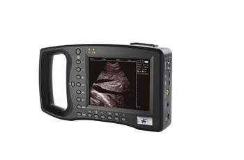Palm Handle Ultrasound Scanner (WED-2000A)