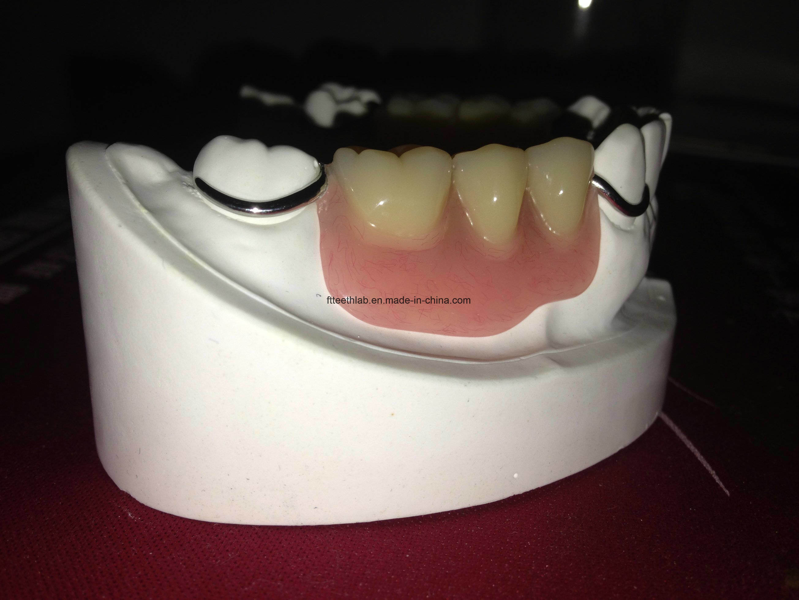 Dental Cobalt Chrome Casting Framework Denture
