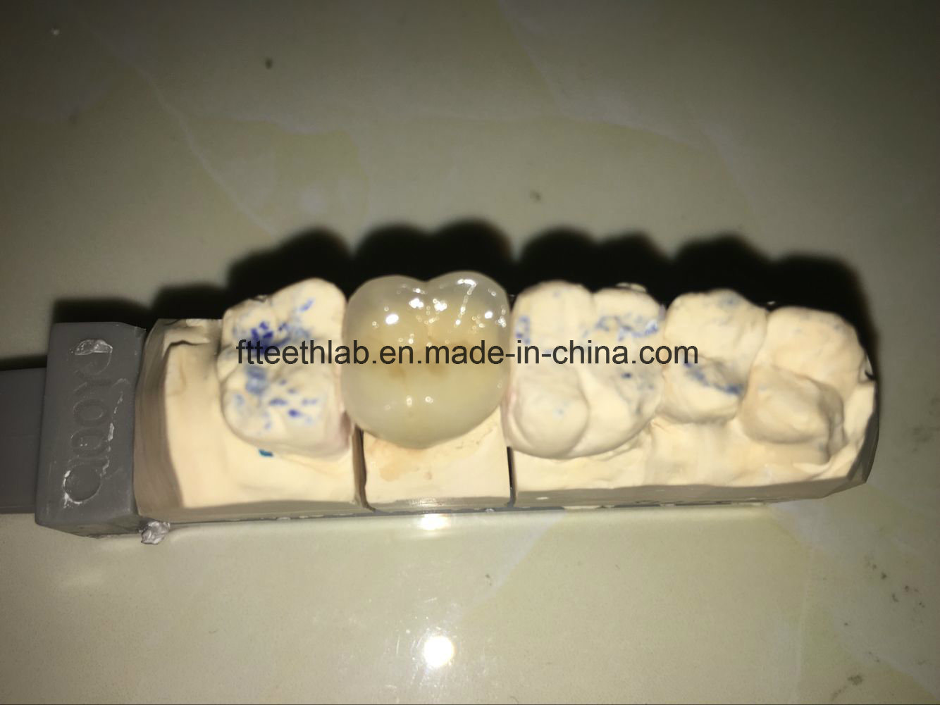 Permanent Dental Crowns Made in Chinese Dental Lab