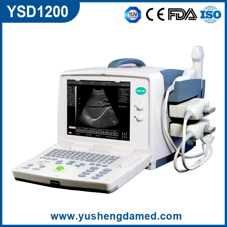 Ce Medical Diagnostic Obstetrics PC Based Digital Portable Ultrasound Scanner