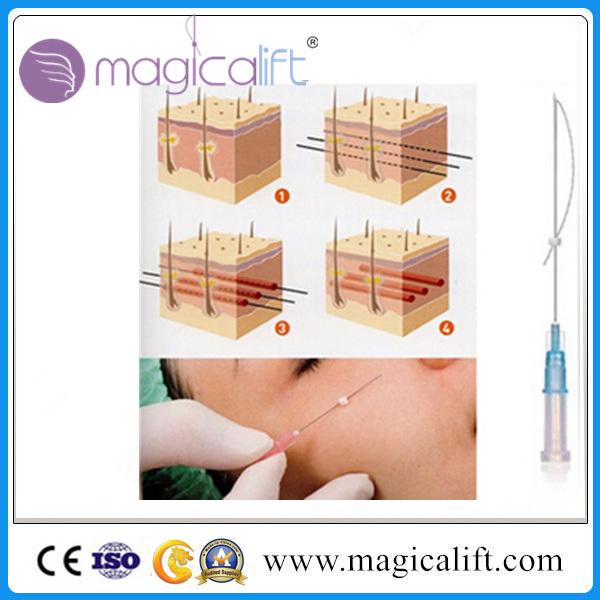 Disposable Polydioxanone Medical Suture Pdo Thread