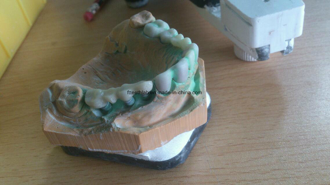 Dental Cemented Implant Bridge