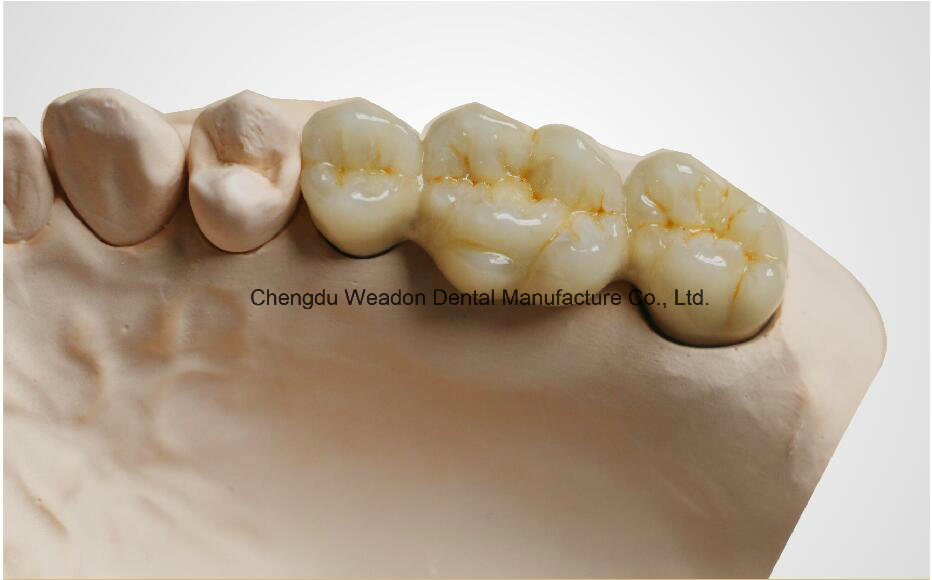 Metal Crown for Denture From Chinese Dental Lab