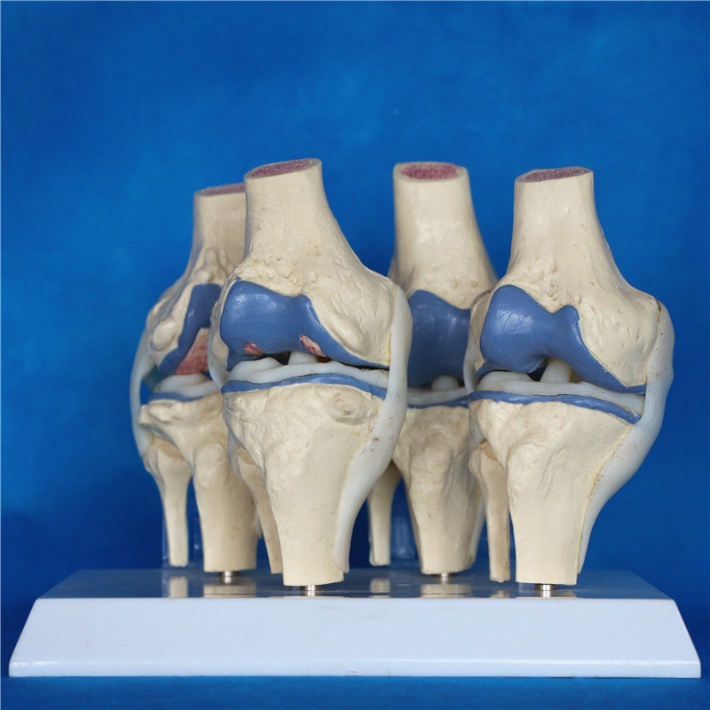 Disease Comparision Medical Products Knee Joint Skeleton Teaching Model (R020904)
