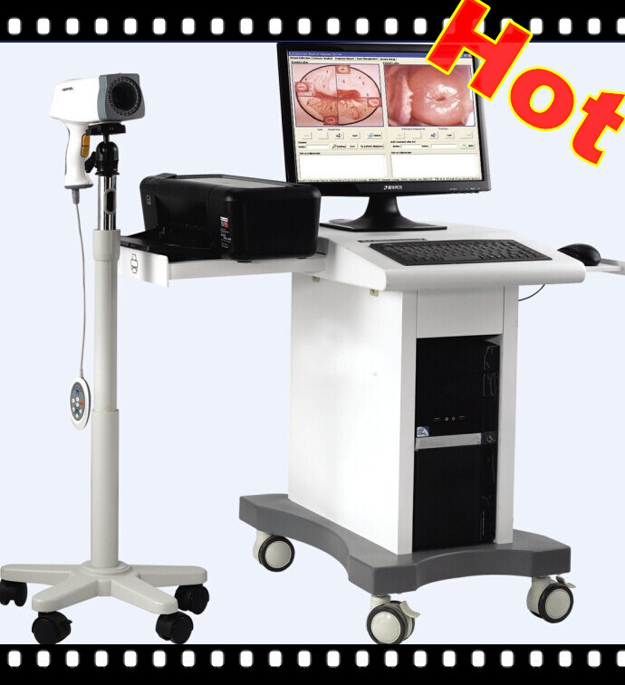 Cheap Hot Sale Electronic Colposcope