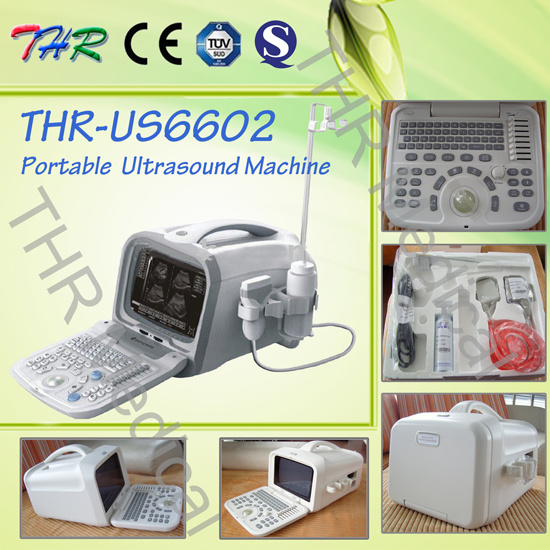 Portable Ultrasound Machine (THR-US6602)