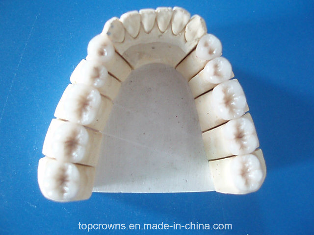 Co-Cr Porcelain Crowns and Bridges with All Kinds of Colors