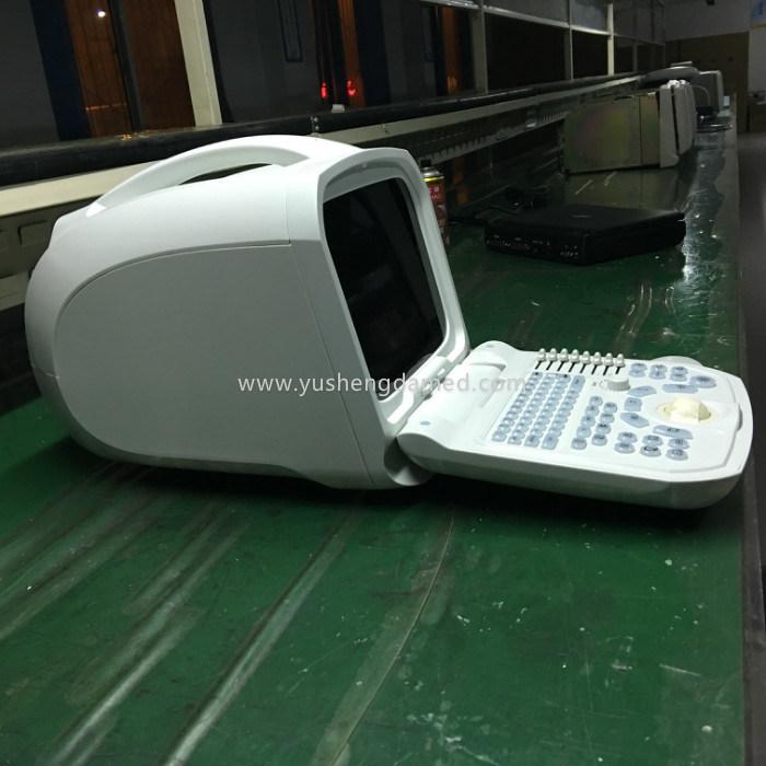 Ce Medical Abdominal Bladder Full Digital Portable Ultrasonic Diagnosis Equipment
