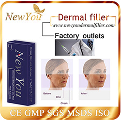 Factory Outlets Sodium Hyaluronic Acid Filler with Lidocaine