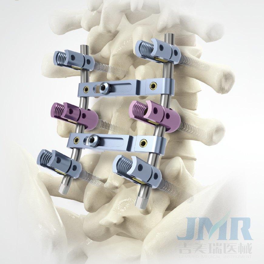 Fissatore interno spinale universale universale di af for Interno j