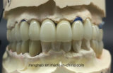 PFM Co-Cr Bridge Made in Minghao Dental Lab