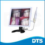 Picture-in-Picture Multi-Function Intraoral Camera