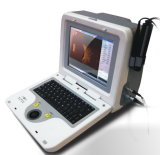 Medical Portable and Digital Ab Scan Ophthalmic Ultrasound, Medical Ultrasound, Medical Ophthalmic Instrument (6000AB)