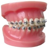 Orthodontic Bracket (BR057-130)
