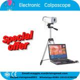 Ce ISO Mark Digital Electronic Colposcope