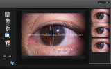 Professional Software for Slit Lamp