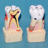 Integrative Pathological Human Teeth Anatomy Structure Dental Model (R080114)