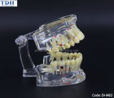Dental Treatment Planning Educational Demonstration Teeth Model (DI-M02)