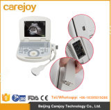 New Product Portable Full Digital Laptop Medical Ultrasound Scanner with 3.5 Convex Probe-Javier