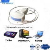 Low Cost Tablet Ultrasound Scanner USB Ultrasound Probe