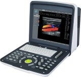 Portable Color Doppler (FDC6100)