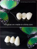 Dental Products of IPS. E-Max Crown Made in Minghao Dental Lab