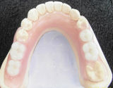 Valplast Denture for Clinic From Chinese Dental Lab