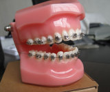 Dental Bracket
