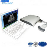 3D Image Function USB Ultrasound Scanner with a Panel Box
