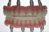Dental Long Implant Bridge