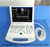 Portable Cardiac Ultrasound 3D High-End Color Doppler Popular in Uzbekistan