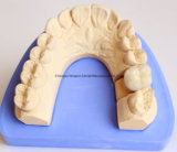 Metal Pfm Crown Denture for Clinic From Chinese Dental Lab