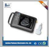 Handheld Palm Ultrasound Scanner for Animals