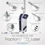 Fractional CO2 Laser Wart Removal Verruca Removal