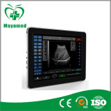 Mabh25 Ultrasound Scanner with CE Approved (MABH25)