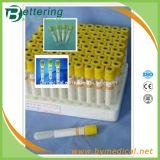 Yellow Cap Gel Vacuum Blood Tubes