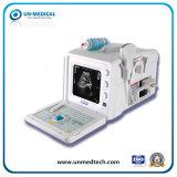 Portable B/W Ultrasound Machine with Convex Probe