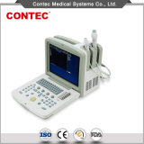 Portable B Mode Ultrasound Scanner with Ce Certificate