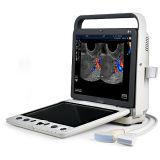Sonoscape S9 4D Color Doppler Ultrasound Scanner, Ultrasound Machine 4D