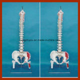 Flexible Vertebral Column Model with Femur Heads and Painted Muscles