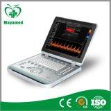 My-A024 Medical Notebook Portable Color Doppler Ultrasound Scanner