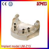 Umg Dental Composite Material Dental Jaw Model Cheap Dental Model