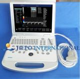Medical Product Portable Ultrasound Scanner with Ce