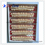 Multi-Layer Synthetic Resin Teeth of Dental Material