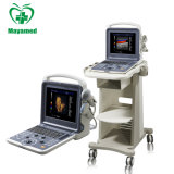 China Cheapest Medical Portable/Trolley Type Full Digital Color Doppler B Ultrasound Scanner Machine with Probe
